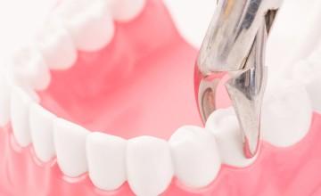 让口腔健康,将疾病拒之口外